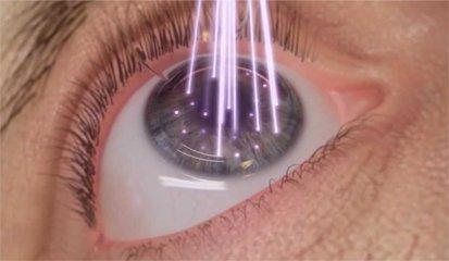 tecnología avanzada clínica visionlaser